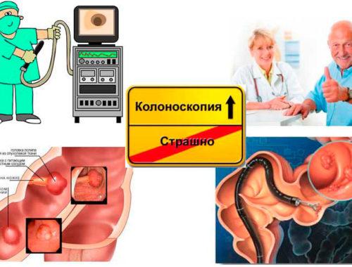 Колоноскопия кишечника это необходимость